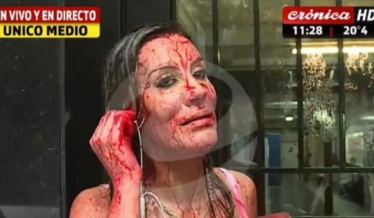 La impactante imagen de Natacha Jaitt para denunciar a su ex pareja